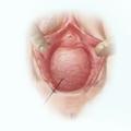 Liečba vaginálneho prolapsu laserom - Cystokela
