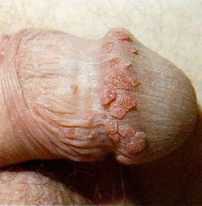 Human papiloma vírus - HPV infekcia