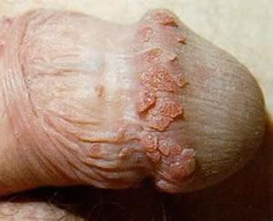 Genitálne bradavice a HPV