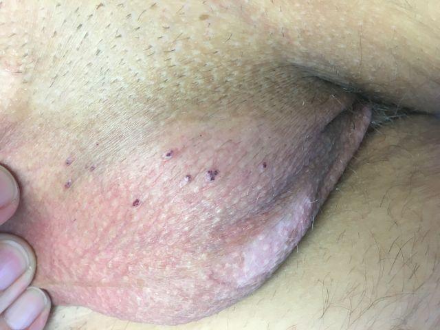 Hemangiomy, cievky, modré a červené vyrážky na genitále